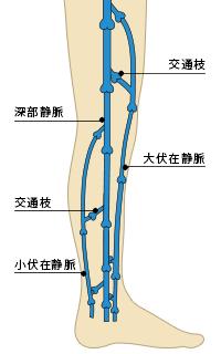 下肢静脈瘤について|名古屋市緑区の循環器内科 武田ハート ...